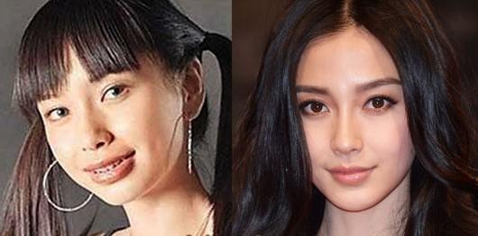 Angelababy - до и после. Источник: plasticsurgerykpop.com