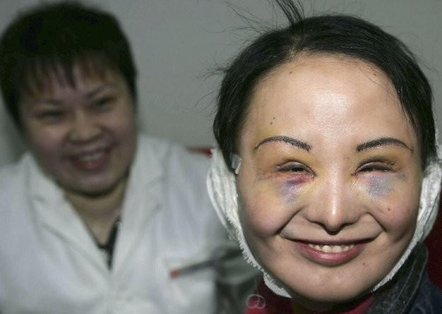 Число желающих изменить внешность растет небывалыми темпами. Источник: avaxnews.net