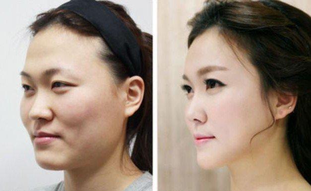 Китаянка после операции в Южной Корее. Источник: www.dailymail.co.uk