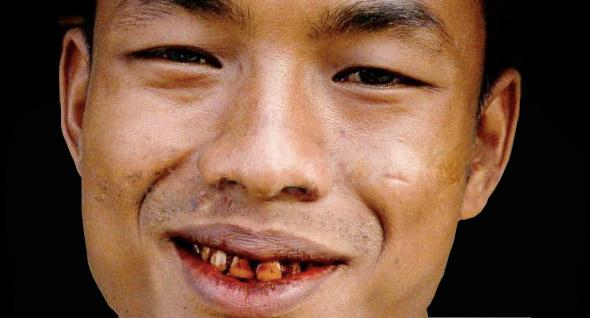 красная улыбка после жевания бетеля