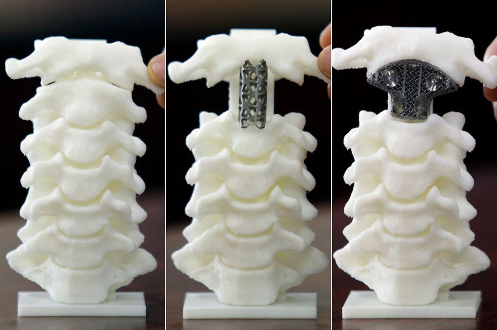 Тенология 3д печати постепенно занимает свое место в хирургии. Источник: www.mirror.co.uk