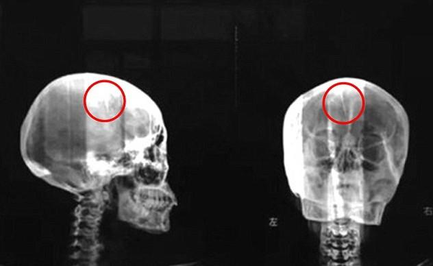 Игла в черепе у китаянки. Источник i.dailymail.co.uk