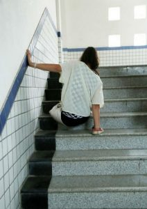 Ей пришлось учиться ходить на руках. Источник: shanghaiist.com