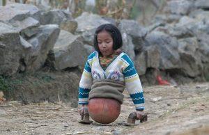 Еще 6 лет назад она передвигалась с помощью мяча. Источник: dailymail.co.uk