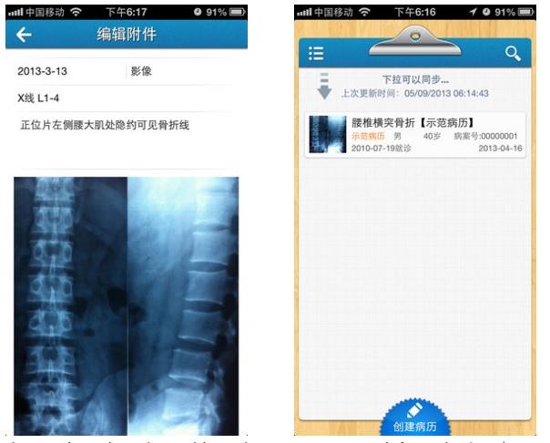 Так выглядит китайское приложение Чжана изнутри. На фото - рентген пациента и пометки врача. Источник www.techinasia.com